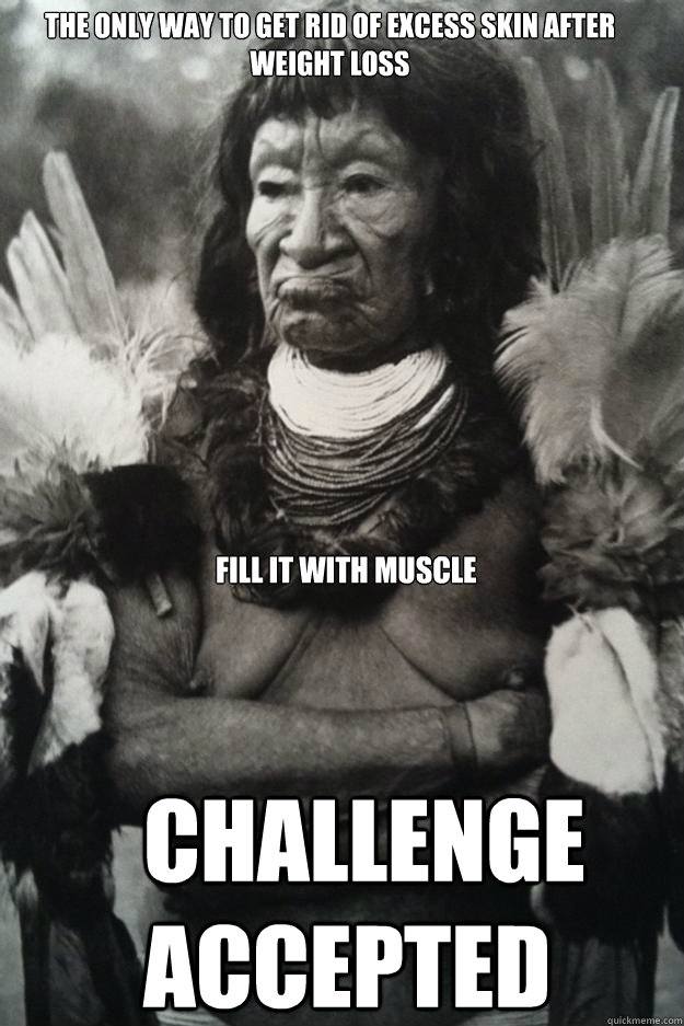 The Only Way To Get Rid Of Excess Skin After Weight Loss Challenge Accepted Fill It With Muscle Irl Me Gusta Challenge Accepted Quickmeme